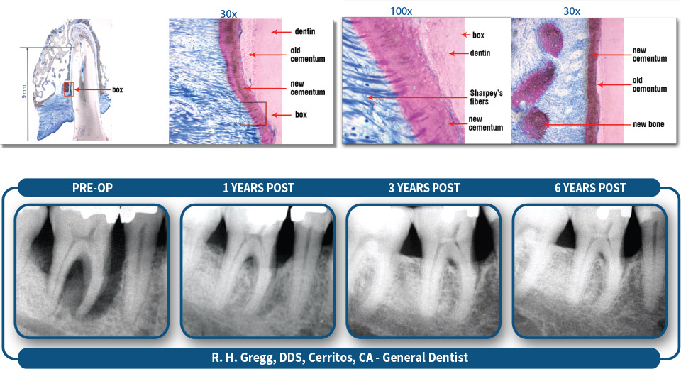 Photographic evidence of peridontal regeneration over a six-year span